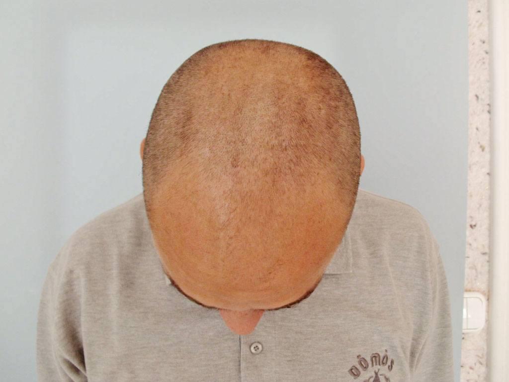 Vor der Haartransplantation