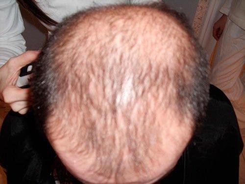 Ansicht von hinten vor der Haartransplantation