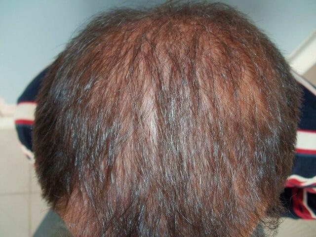 Seitenansicht nach der Haartransplantation
