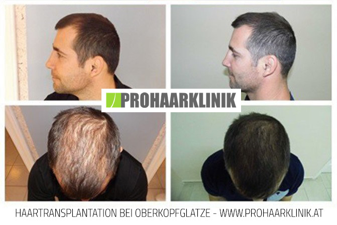 Fue Haarverpflanzung Vorher-Nachher Fotos Ergebnisse