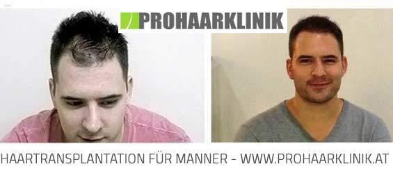 Haartransplantation Frankfurt - Vorher Nachher Fotos