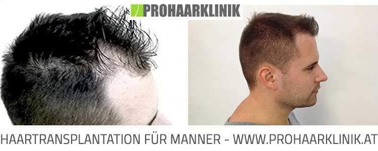Haartransplantation, Haarverpflanzung Hessen