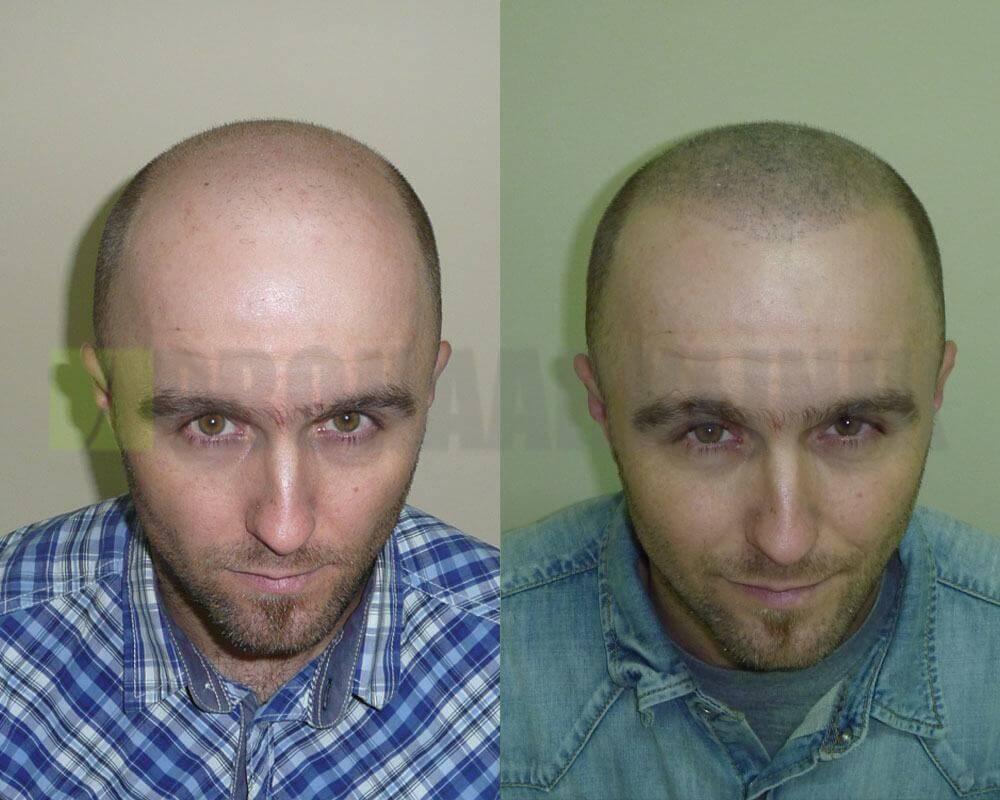 Micro Haar Pigmentierung Vorher-Nachher Bilder: Links vor, rechts nach der Behandlung