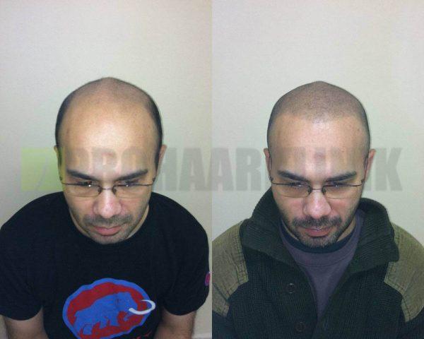 Links vor, rechts nach der Kopfhautpigmentierung