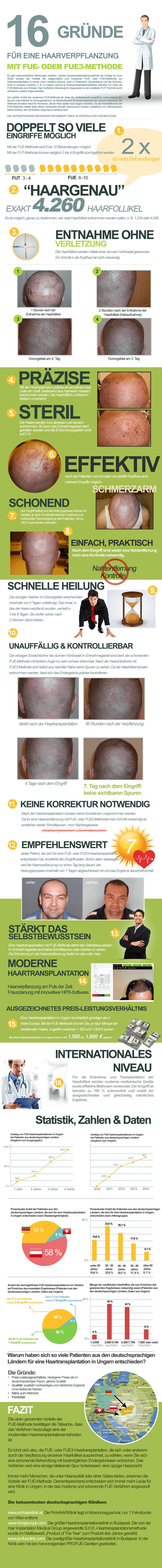 """Infografik """"16 Gründe für eine Haarverpflanzung mit FUE- oder FUE3-Methode"""""""