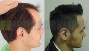 Haartransplantation Erfahrungsberichte Frühling 2013