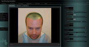 Ergebnis nach Haartranplantation bereits vor Behandlung sichtbar