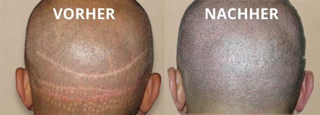 Haartransplantation Narbenentfernung Vorher-Nachher Foto