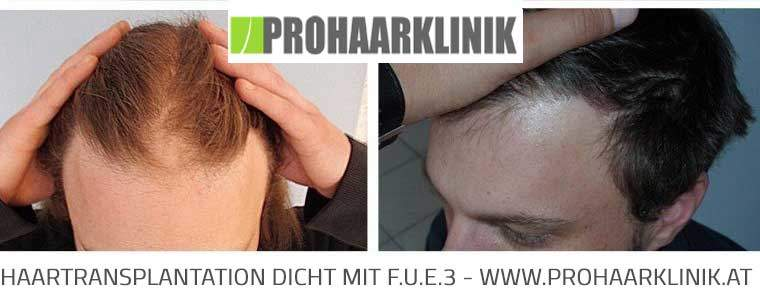 FUE Haartransplantation für Manner