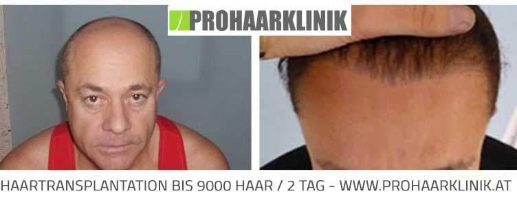 Haartransplantation - 9000 Haar