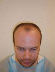 Geheimratsecken vor der Haartransplantation