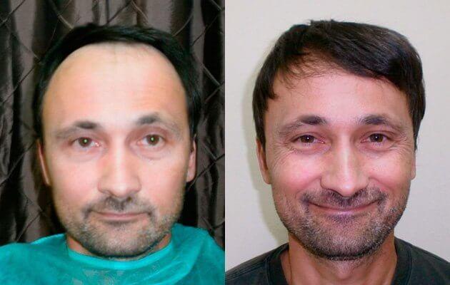 Haare vor und nach der Haartransplantation