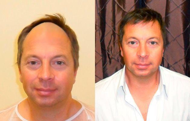 Haartransplantation Erfolg - Bild 1