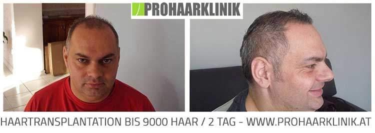 Haartransplantation BIS 9000 Haar