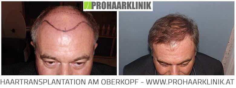 Haartransplantation Vorher Nachher - FUE