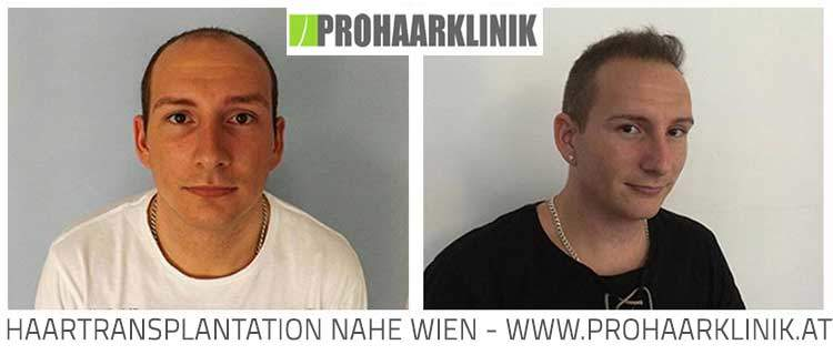 Haartransplantation Vorher Nachher Fotos