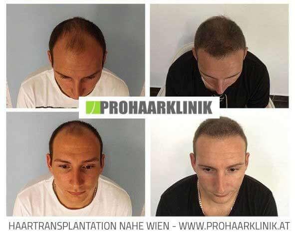 Fue Haartransplantation Vorher-Nachher Fotos Ergebnisse