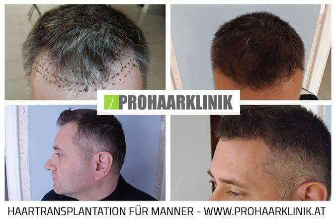 FUE Haartransplantation Vorher Nachher