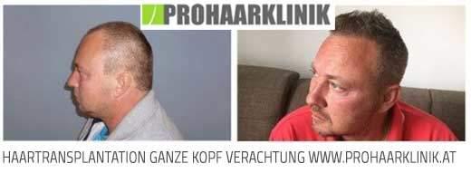 Haarverpflanzung Niedersachsen, FUE Haartransplantation