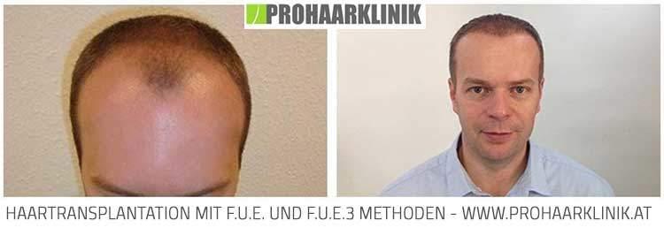 FUE Haartransplantation Ergebnis