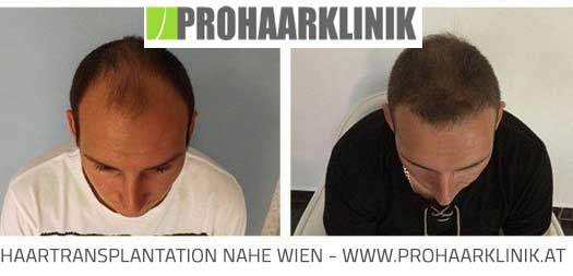 Haartransplantation Bilder