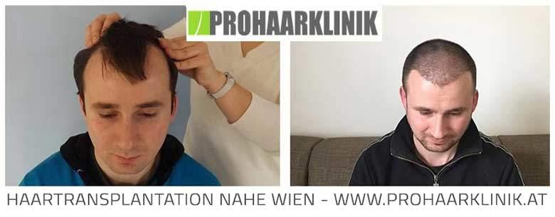 FUE Haarverpflanzung Ergebnisse