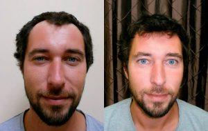 Erfolgsbeispiel einer Haarimplantation in Ungarn mit Beratung in Wien