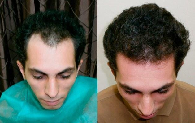 Haartransplantation Erfolg - Bild 3