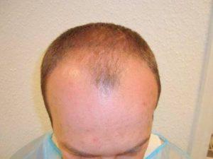 Geheimratsecken was tun? Haartransplantation als Lösung
