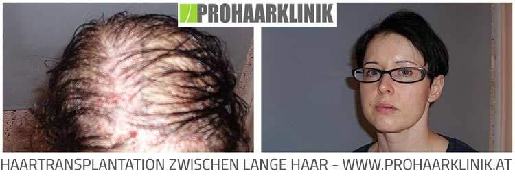 FUE Haartransplantation für Frauen
