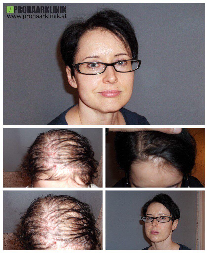 Haartransplantation Appenzell Frauen vohrer nachher Haarverpflanzung