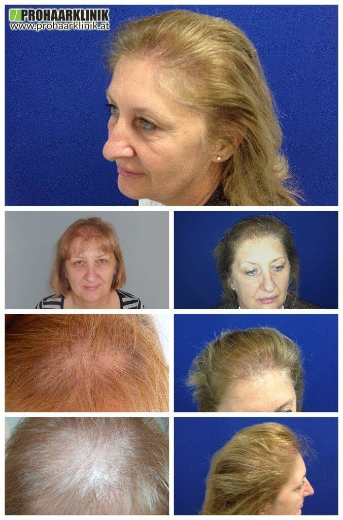 Haartransplantation Schwerin Frauen vohrer nachher Haarverpflanzung