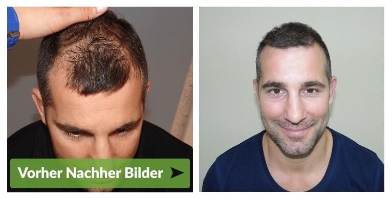 Haartransplantation Appenzell vohrer nachher Haarverpflanzung