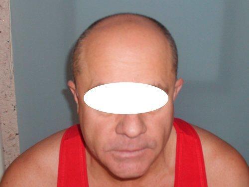 Ansicht von oben vor der Haartransplantation