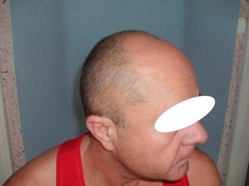Seitenansicht vor der Haartransplantation