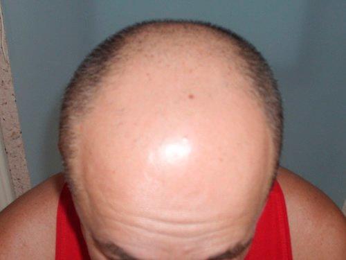 Ansicht von vorne vor der Haartransplantation