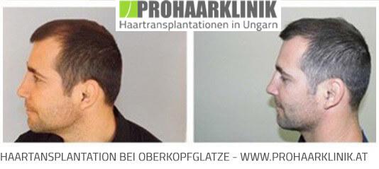 Haartransplantation für Manner und Frauen