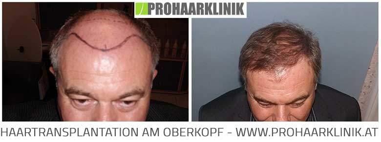 Fue Haarimplantation Vorher-Nachher Fotos Ergebnisse
