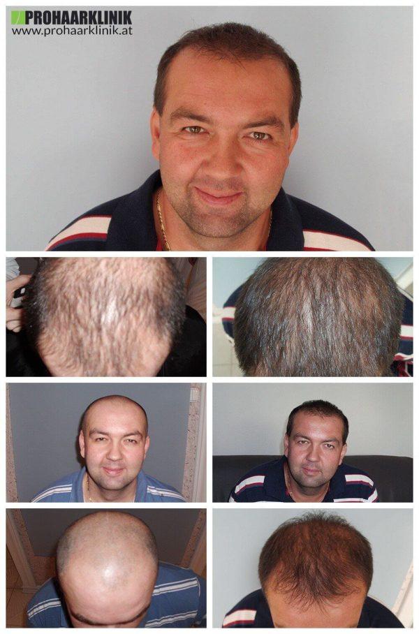 A. K. Haartransplantation Ergebnis - ProHaarklinik