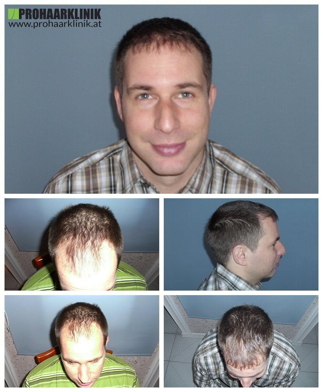 Haartransplantation Vorher Nachher