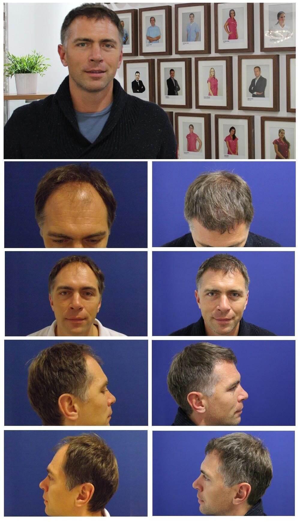 Vorher Nacher Haartransplation Prohaarklinik Wien