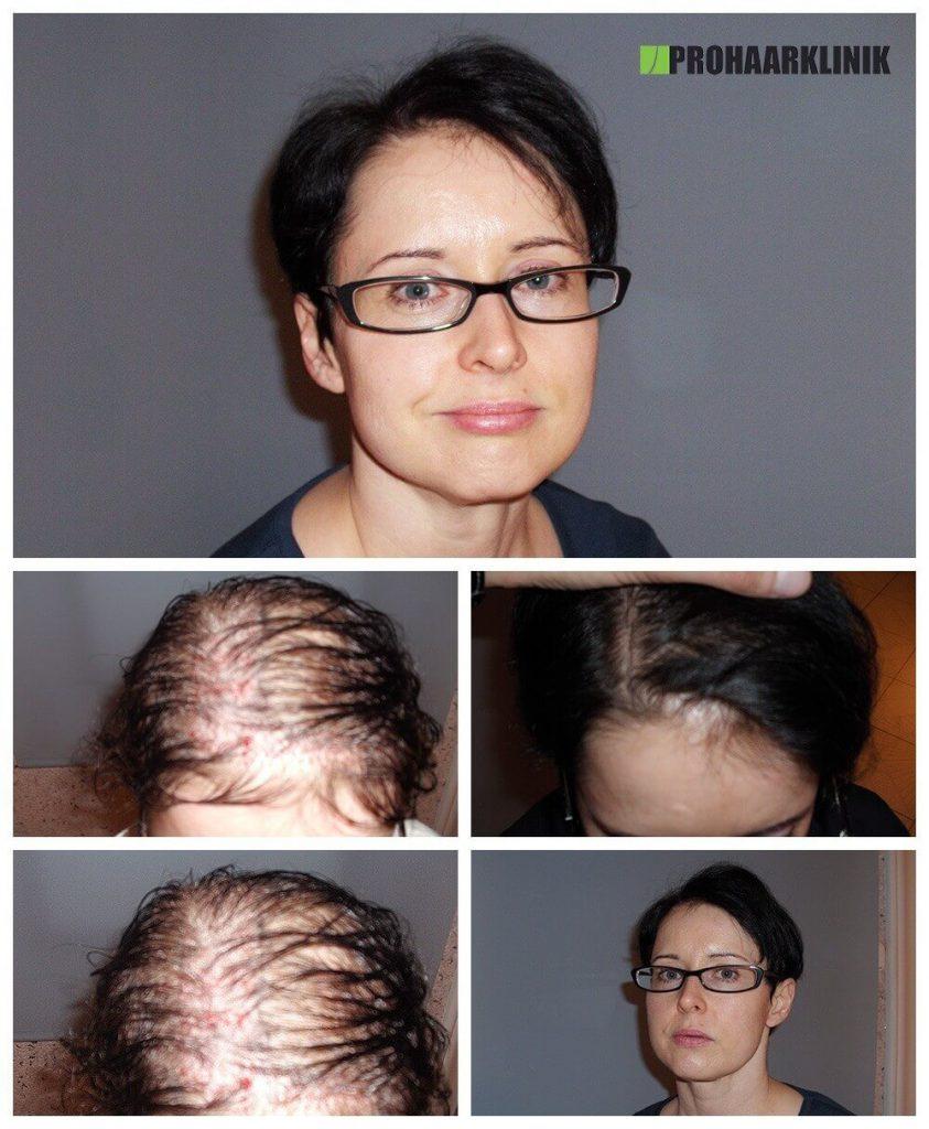 Haartransplantation Vorher-Nachher Fotos Ergebnisse