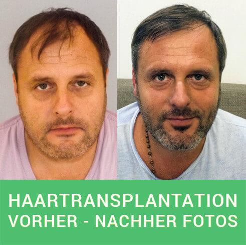 PROHAARKLINIK Haartransplantation Vorher Nachher Fotos