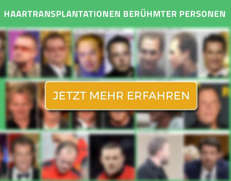 Haartransplantation Berühmter Personen