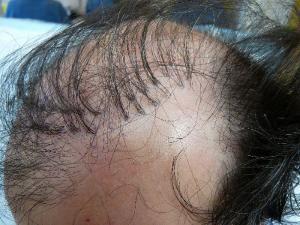 Fehler bei der Haartransplantation