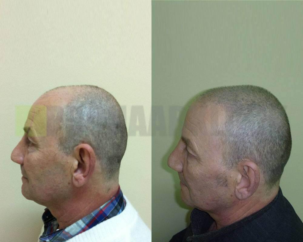 aeztliche-kopfhautpigmentierung-vorher-nachher-bilder3