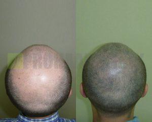 Micro Haar Pigmentierung Vorher-Nachher Bilder