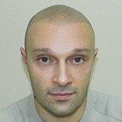 Kopfhautpigmentierung Vorher-Nachher Bilder