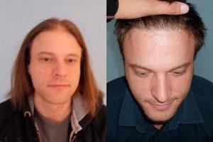 Vorher-Nachher Bilder einer Haartransplantation in der PROHAARKLINIK