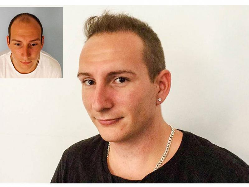 A. B. Haartransplantation Vorher Nacher Ergebnis Prohaarklinik Wien